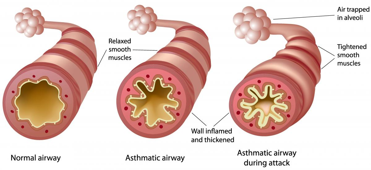 Asthma Pathophysiology airway diagram