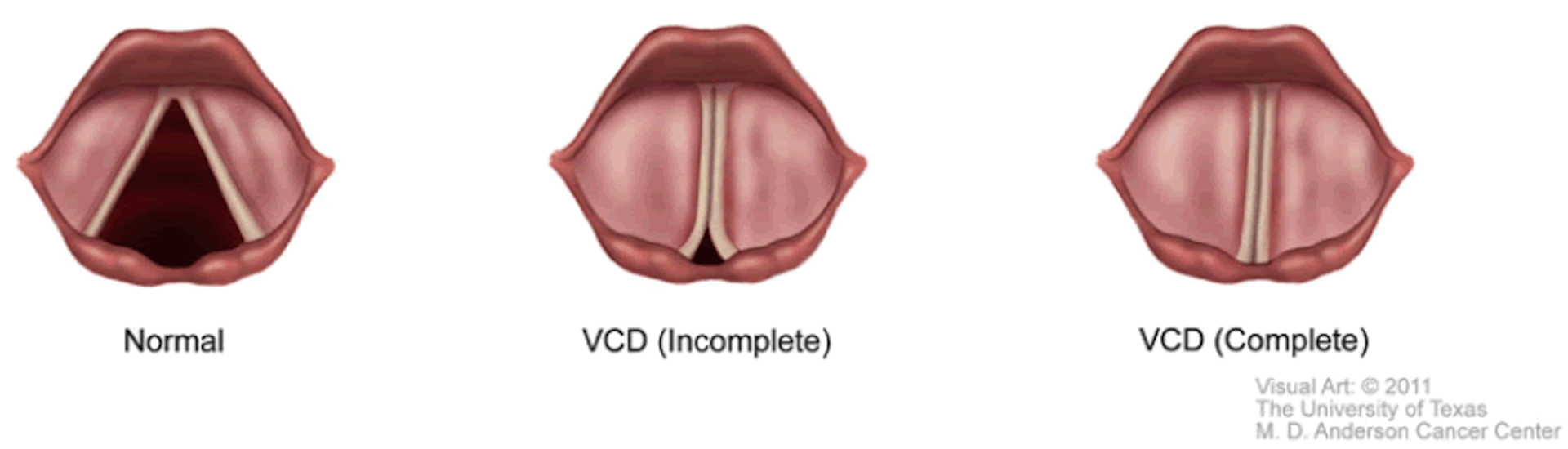 Vocal Cord Dysfunction VCD infographic showing normal, incomplete and complete VCD