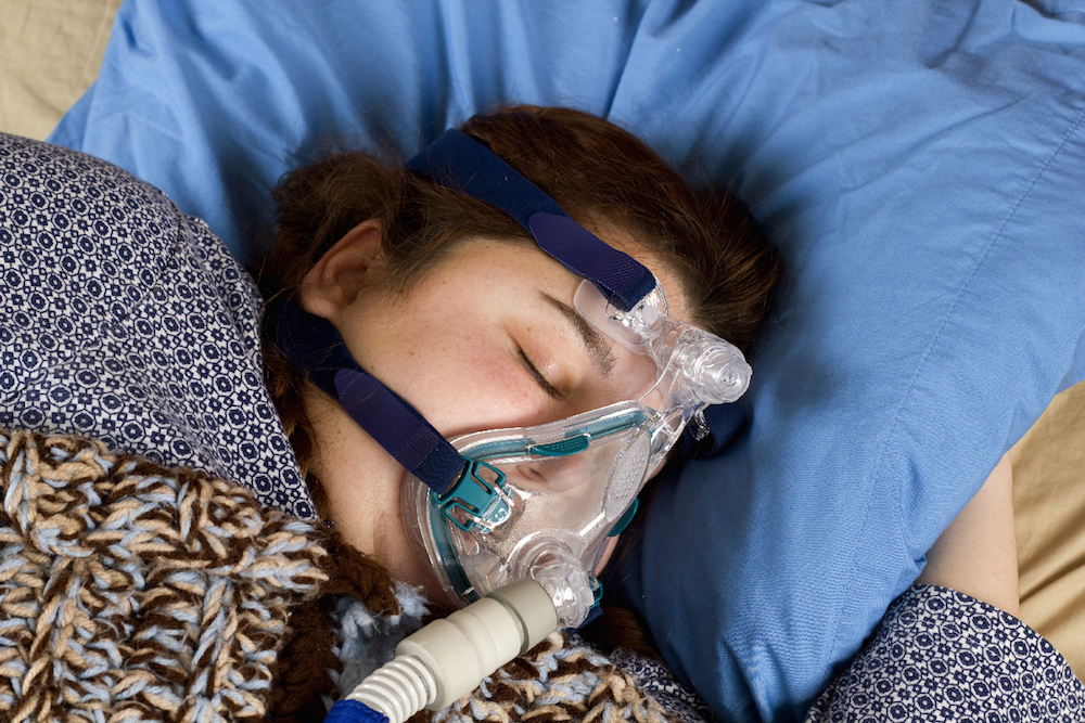 young girl sleeping with Obstructive Sleep Apnoea